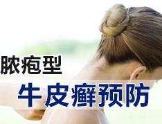 脓疱型牛皮癣治疗时该注意哪些事项